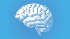 Faster MRI Method Could Shake Up Brain Imaging