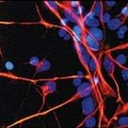 A Stroke for Stem Cells