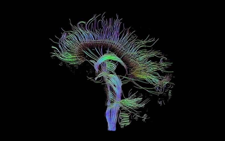 brain wiring diagram wiring diagram and schematic collection brain made of wires pictures wire diagram images