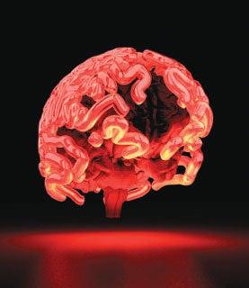 brain, alzheimer's