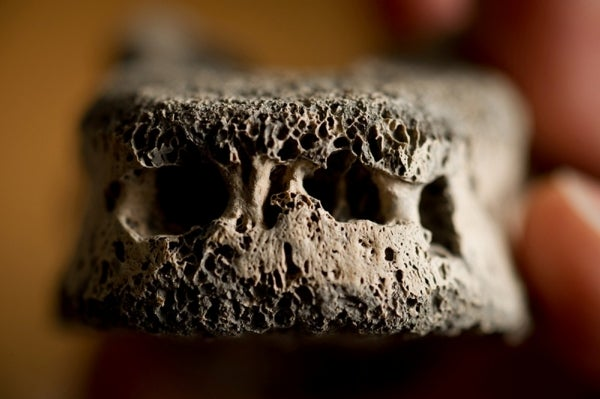 Lives in Ruins: A New Diagnosis for Diseased Ancient Bones
