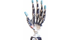 Tomorrow's Prosthetic Hand