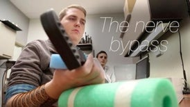 Paralyzed Man Bypasses Arm Nerves to Move Hands with His Brain