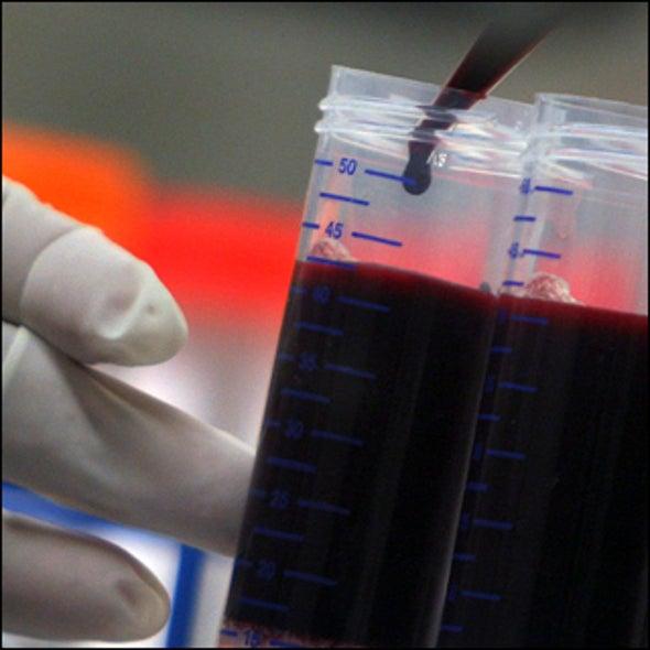 HIV Vaccine Hopeful Fails