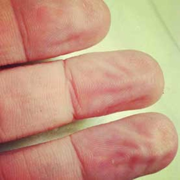 Why Do Our Fingers and Toes Wrinkle During a Bath?