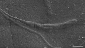 Oldest Animal Sperm Found inside Fossilized Worm Cocoon