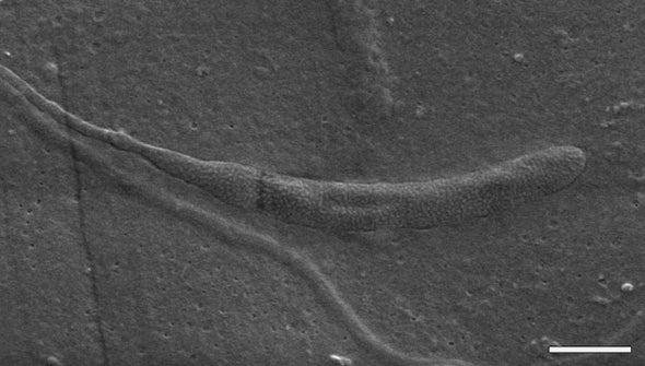 Oldest Animal Sperm Found inside Fossilized Worm Cocoon