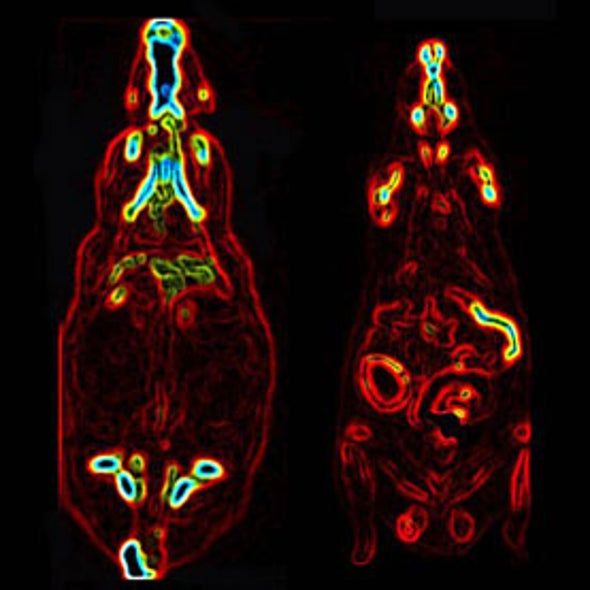 Gastric Bypass Makes Gut Burn Sugar Faster
