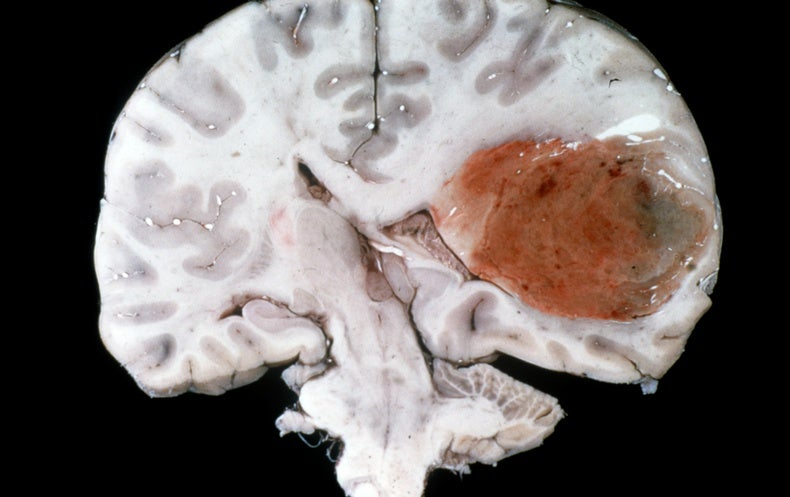 New Strategies Take on the Worst Cancer--Glioblastoma - Scientific