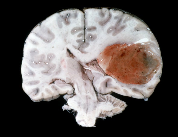 New Strategies Take on the Worst Cancer--Glioblastoma