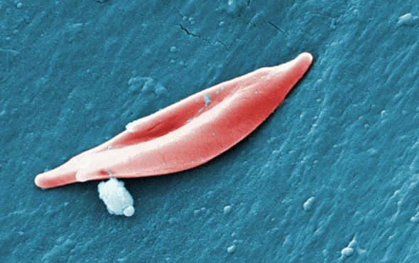FDA Approves First Sickle Cell Drug in 20 Years