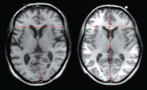 Warped Brain Lobes Could Underlie Depression Symptoms