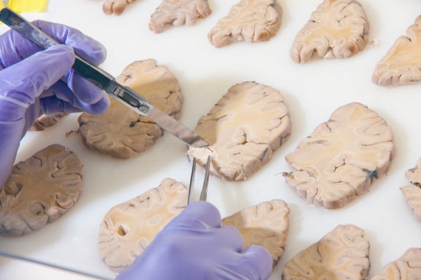 Scientists Start Building a Parts List for the Brain