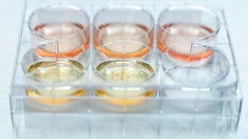 """Lab-Grown """"Mini Brains"""" Can Now Mimic the Neural Activity of a Preterm Infant"""