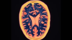 Gut Germs Appear to Play Role in Multiple Sclerosis