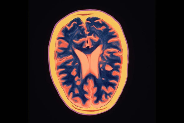 Gut Germs Appear to Play Role in Multiple Sclerosis - Scientific