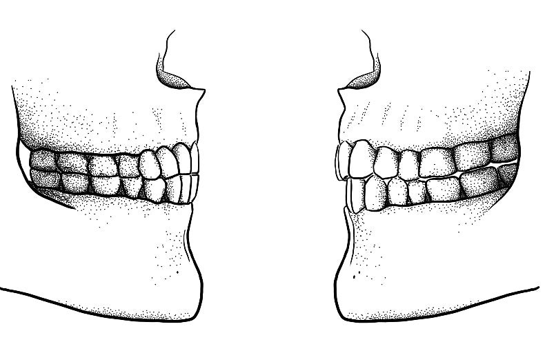 """Mind Your """"Fs"""" and """"Vs"""": Agriculture May Have Shaped Both Human Jaws and Language"""