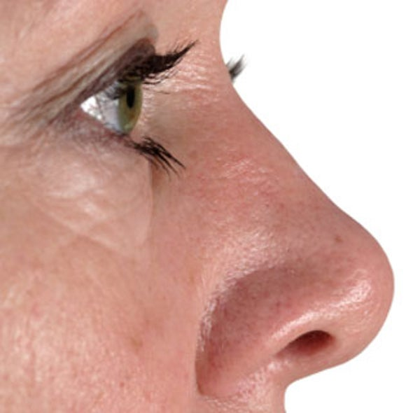 Treating Wrinkles with Cutting-Edge Technology--Without Going Under the Knife
