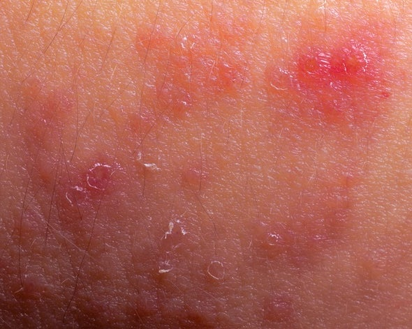 Bacteria Might Share the Blame for Eczema