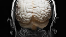 """Huge Brain Study Uncovers """"Buried"""" Genetic Networks Linked to Mental Illness"""