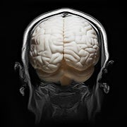 Huge Brain Study Uncovers