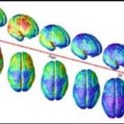 MRI Movie Maps Brain Development