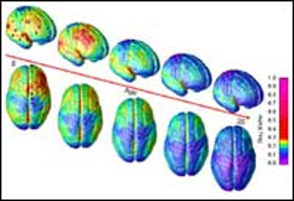 MRI Movie Maps Brain Development