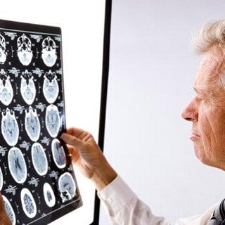 Legislation Introduced to Spur Treatments for Brain Ailments
