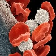 FDA Green-Lights First CAR-T Cancer Drug