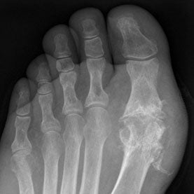 x-ray of foot with gout