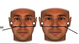 Your Facial Bone Structure Has a Big Influence on How People See You