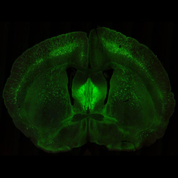 Head Start: Scientists Trace a Wiring Plan for Entire Mouse Brain