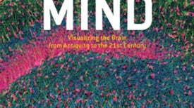 Beautiful Minds: Imaging Cells of the Nervous System [Slide Show]