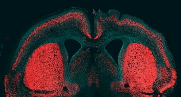 """Big Brain"" Gene Allowed for Evolutionary Expansion of Human Neocortex"
