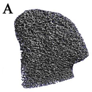 Breakthrough: Bone Graft Grown in Exact Shape of Complex Skull-Jaw Joint