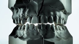 Why We Have So Many Problems with Our Teeth