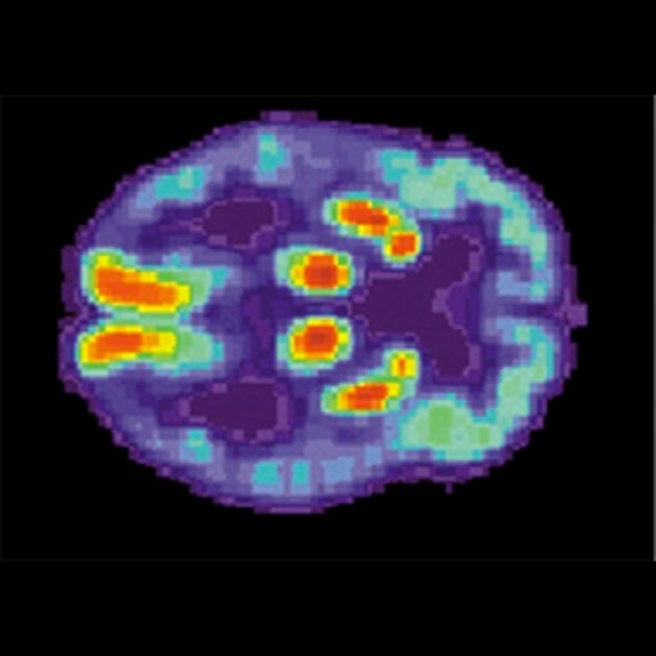 Do Brain Scans of Comatose Patients Reveal a Conscious State?