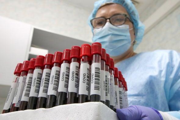 Coronavirus Antibody Tests Have a Mathematical Pitfall