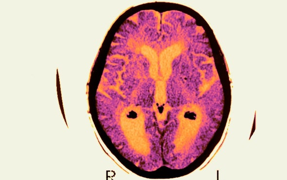 Failed Alzheimer's Trial Does Not Kill Leading Theory of Disease