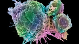 The Fight Against Cancer Is Increasingly Personal