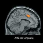 Rejection a Real Pain, Brain Study Shows