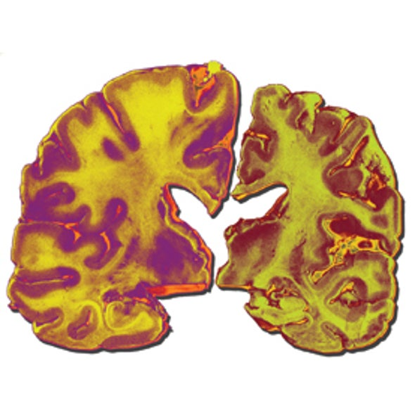 Brain Changes Decades before Dementia Sets In