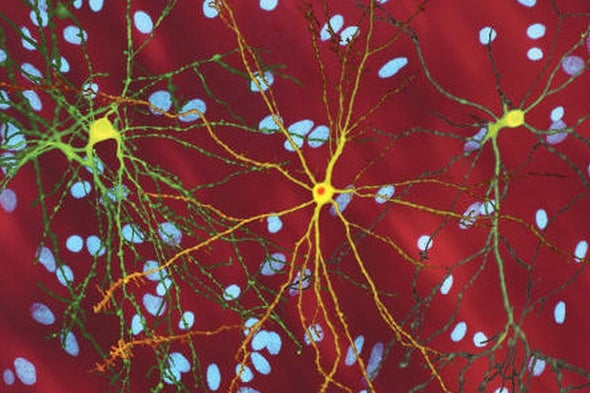 Research Using Brains-in-a-Dish Forces a Radical Rethinking of Huntington's Disease