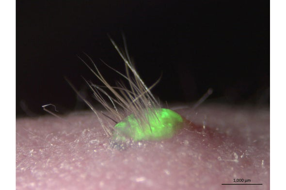 Lab-Grown Skin Sprouts Hair and Sweats