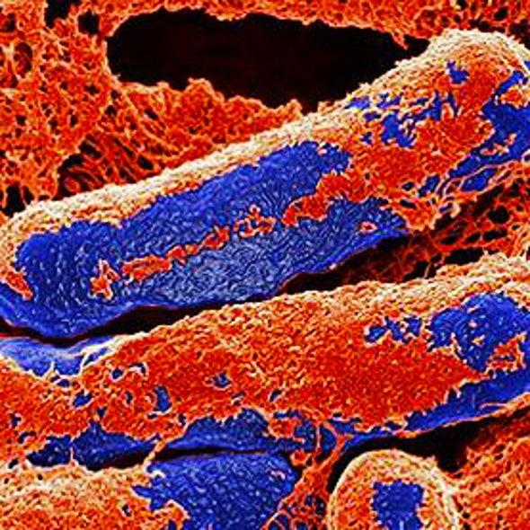 Researchers Keep Mum on Botulism Discovery