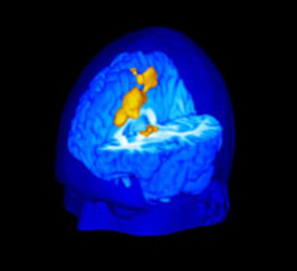 Brain Images Highlight How People Feel Pain