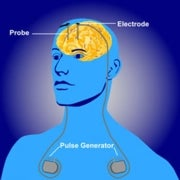Deep-Brain Stimulation Found to Fix Depression Long-Term