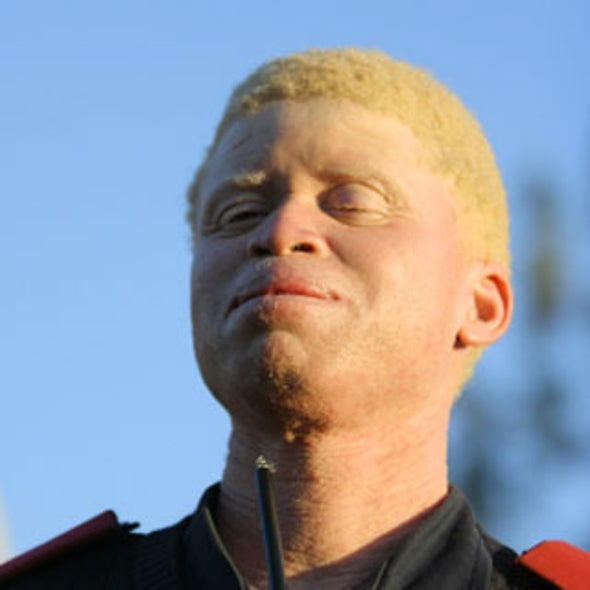 What causes albinism?