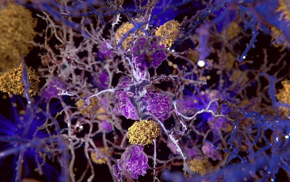 Alzheimer's Study Sparks a New Round of Debate over the Amyloid Hypothesis