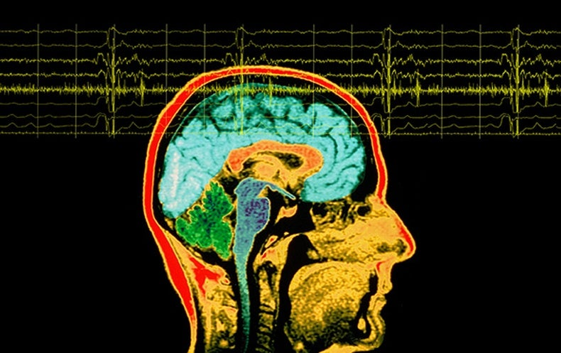 Does Temporal Lobe Epilepsy Influence Personality? - Scientific ...